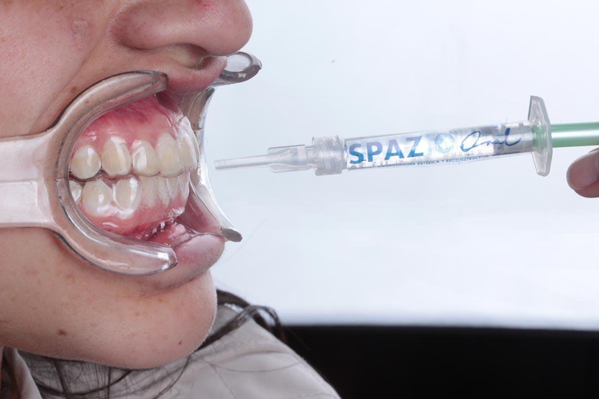 blanqueamiento-dental-04