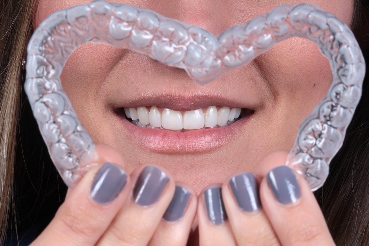 blanqueamiento-dental-05