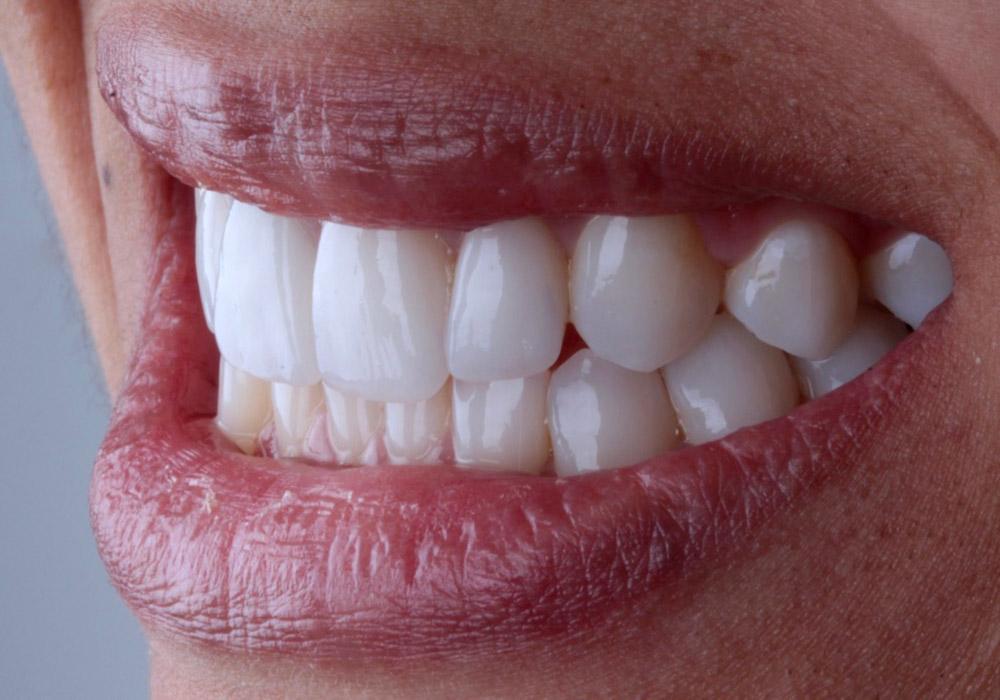 diseno-sonrisa-06