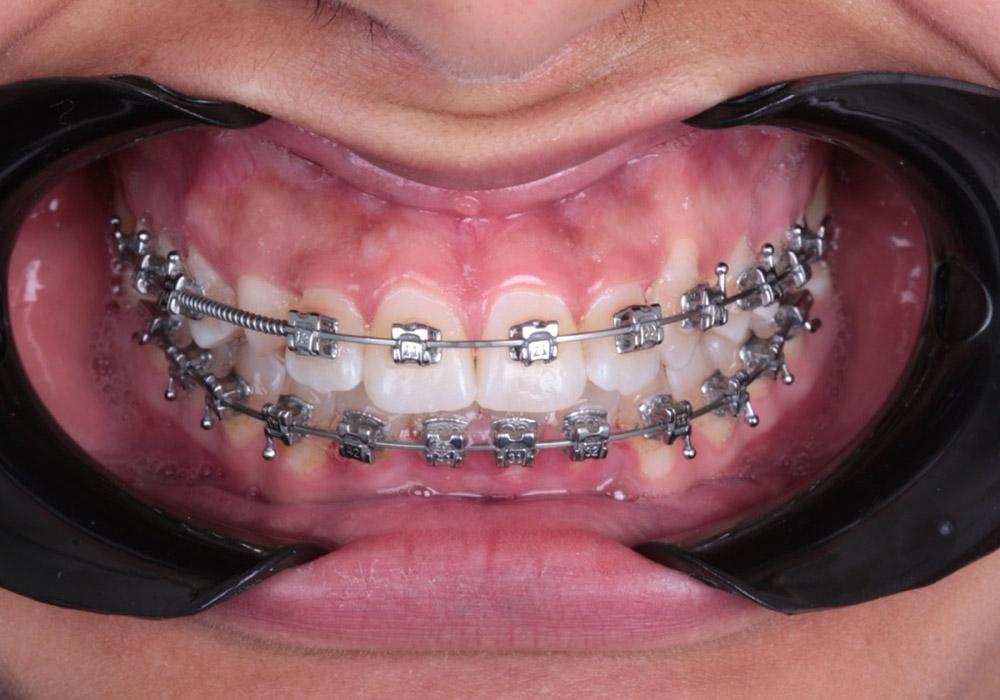ortodoncia-001