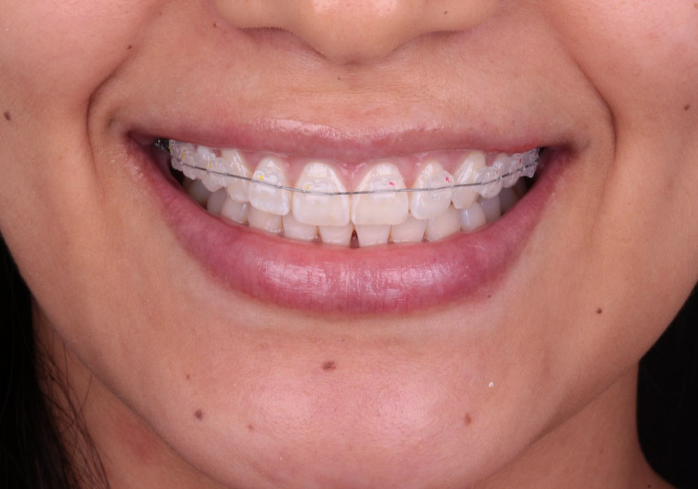 ortodoncia-03