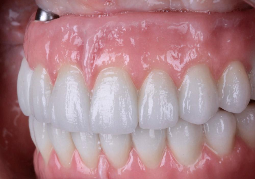 periodoncia-07