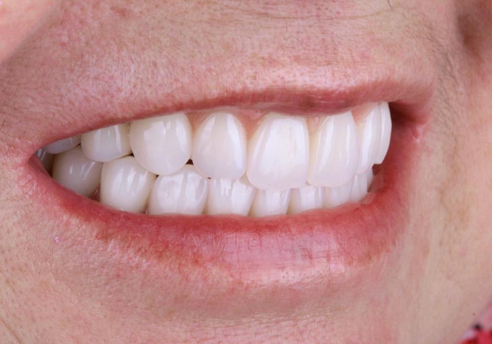 periodoncia-10