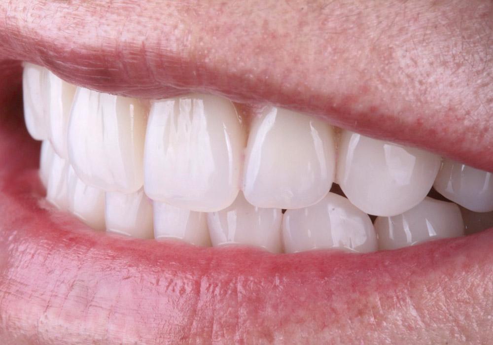 periodoncia-11