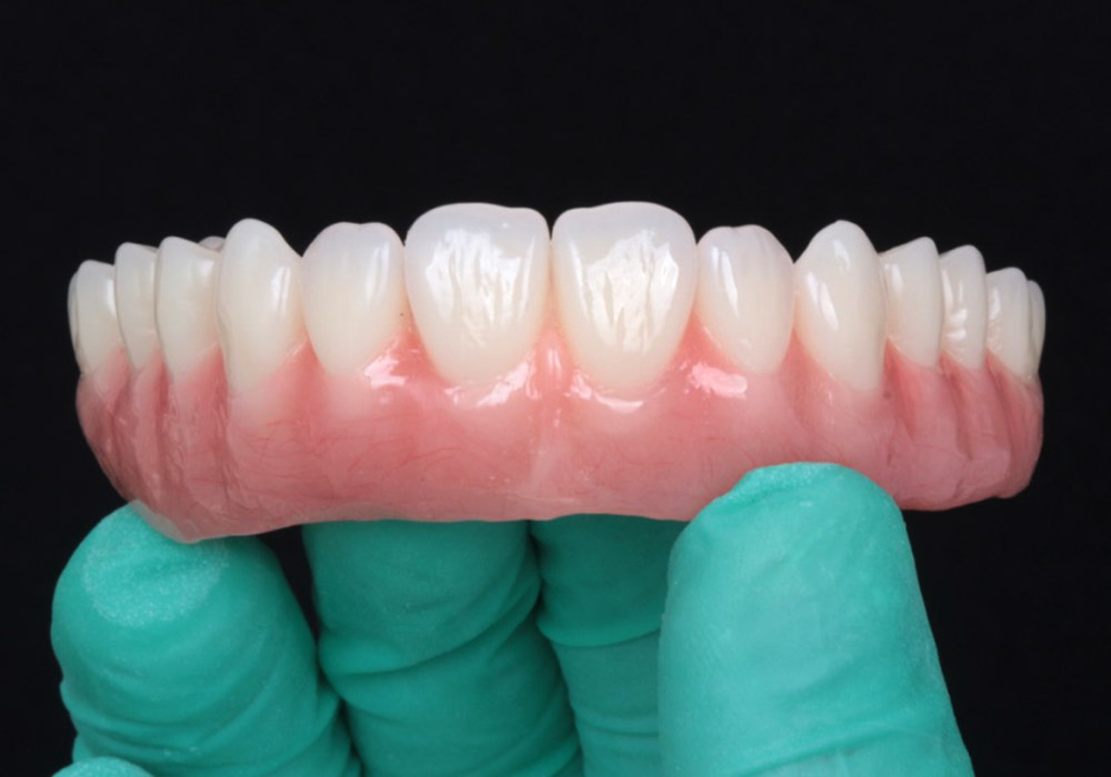 periodoncia-6