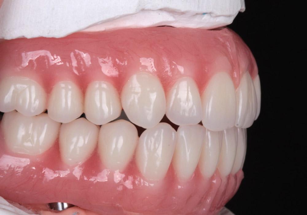 periodoncia-8