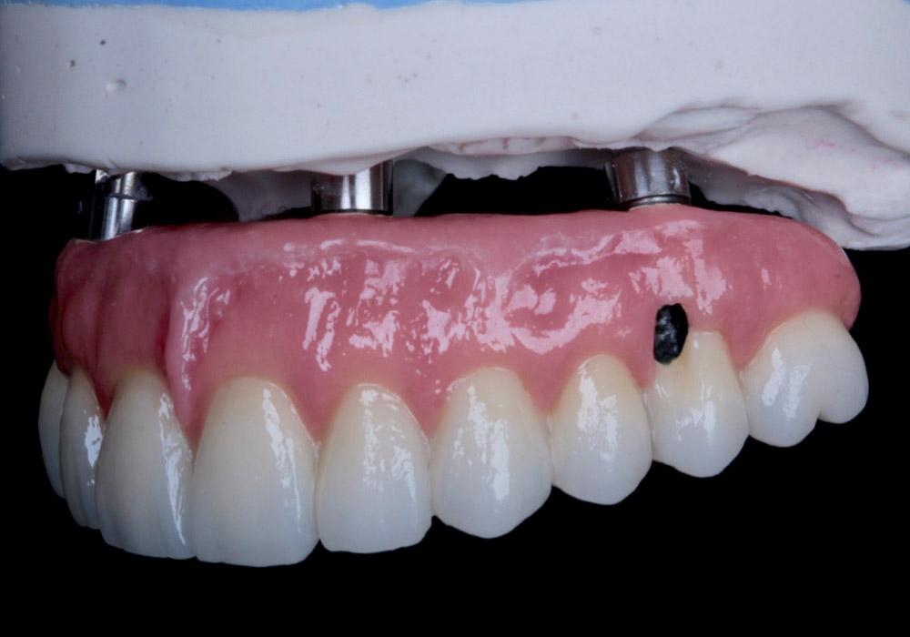 periodoncia-9