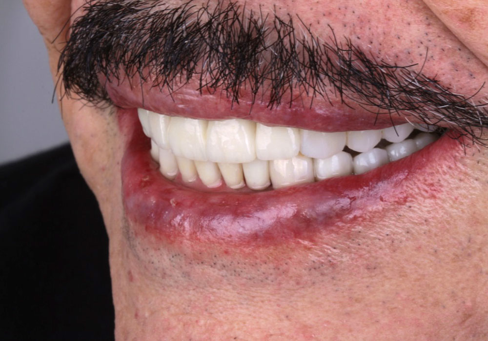 rehab-full-mouth-4